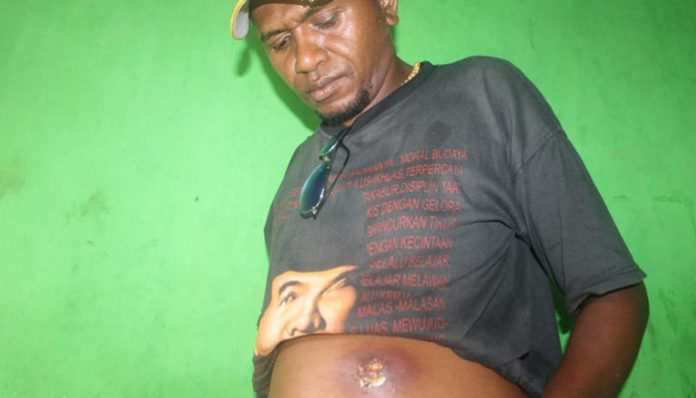 Pasien Jafet Lapuilana menunjukkan luka benjolan di perutnya