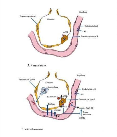Gambar 1: Paru-paru yang terserang covid-19